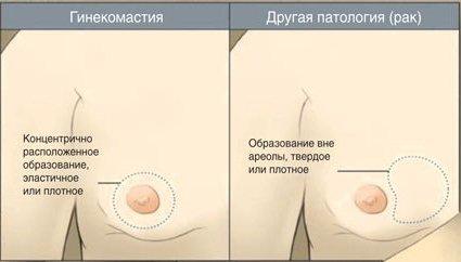 лечение от кишечных паразитов народными средствами